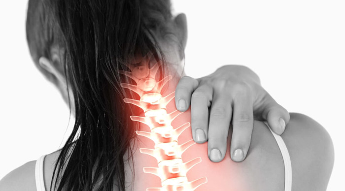Artrosis cervical tratamiento y rehabilitacion fisioterapeutica en madrid