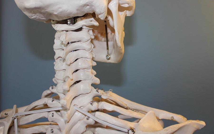 Artrosis Cervical Vertebra