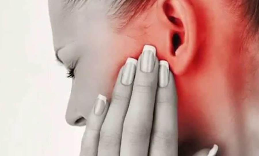 Subluxacion Mandibular