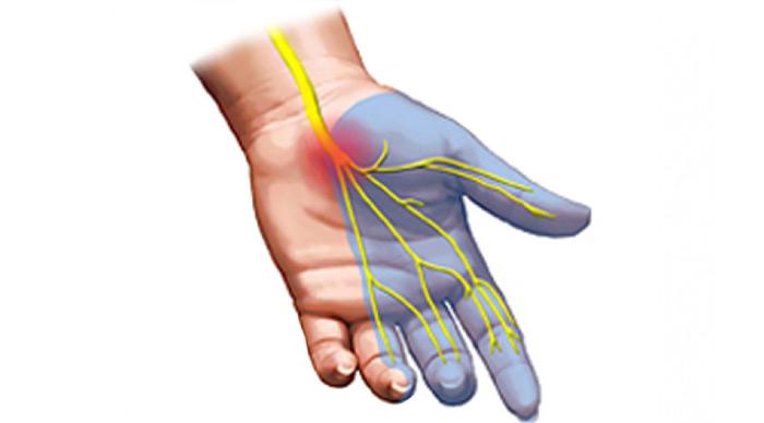 sindrome-tunel-carpiano-tratamiento-fisioterapeutico-para-la-mano-en-madrid