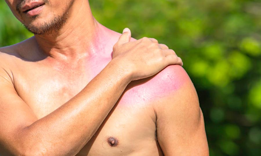 dolor-hombro-tendinitis-aquilea