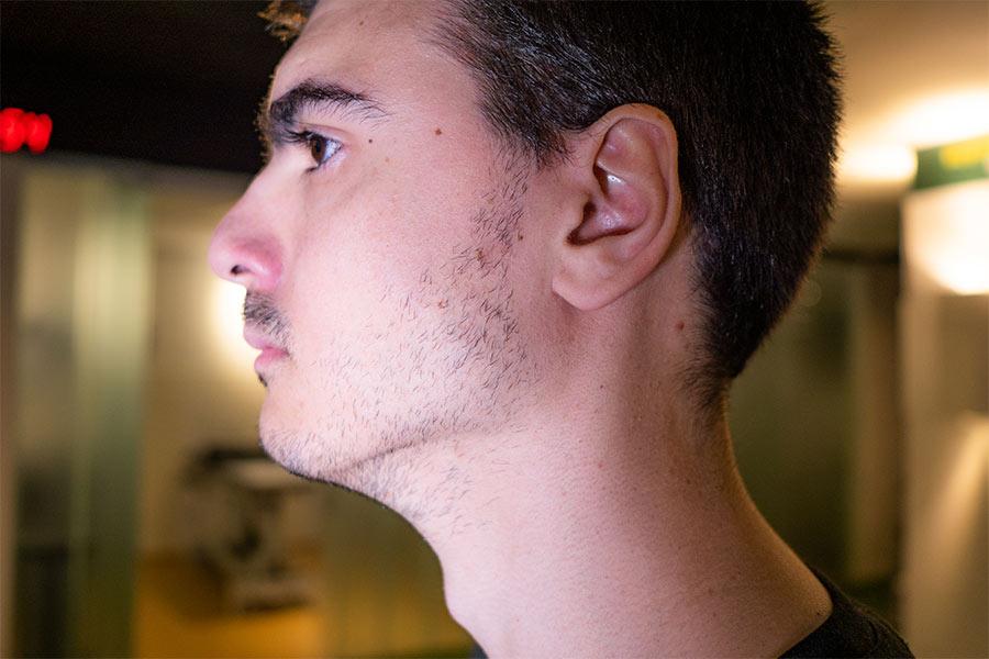 Causas-de-los-trastornos-de-la-Articulación-temporomandibular