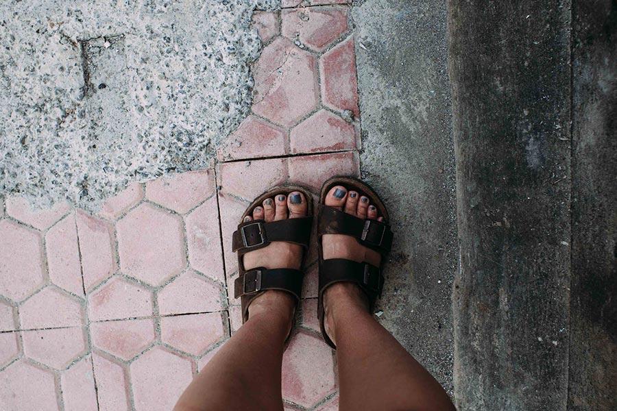 patologías pies verano